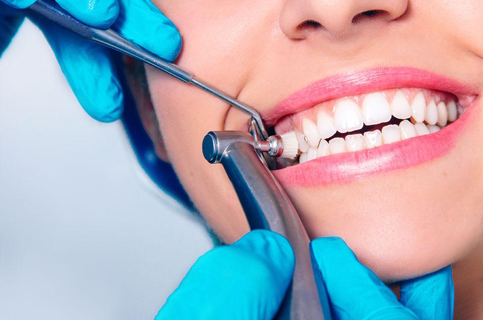 Профессиональная чистка зубов: особенности, виды, этапы и стоимость
