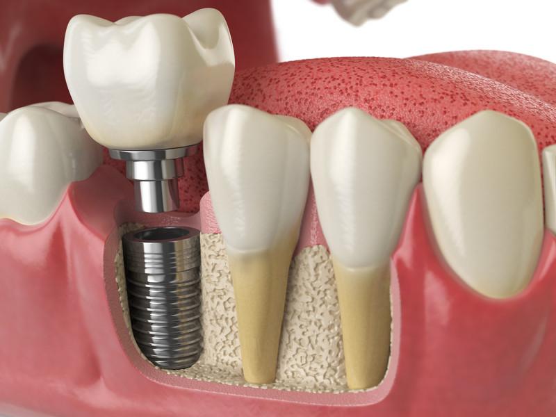 Имплантация зубов на Академической